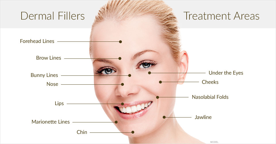 areas of treatment with fillers